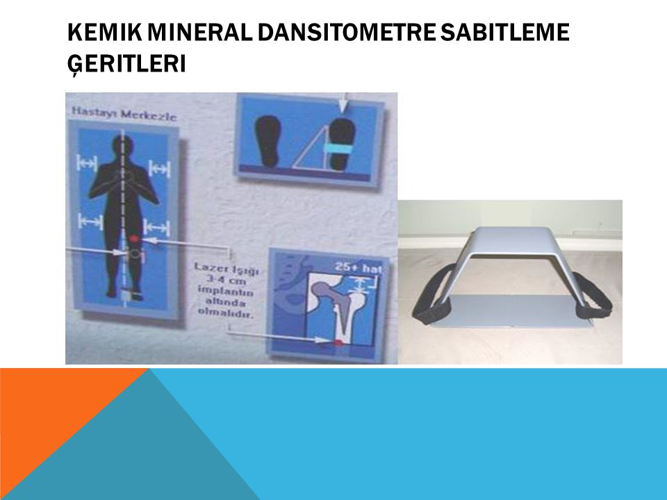 Kemik mineral dansitometre sabitleme Ģeritleri