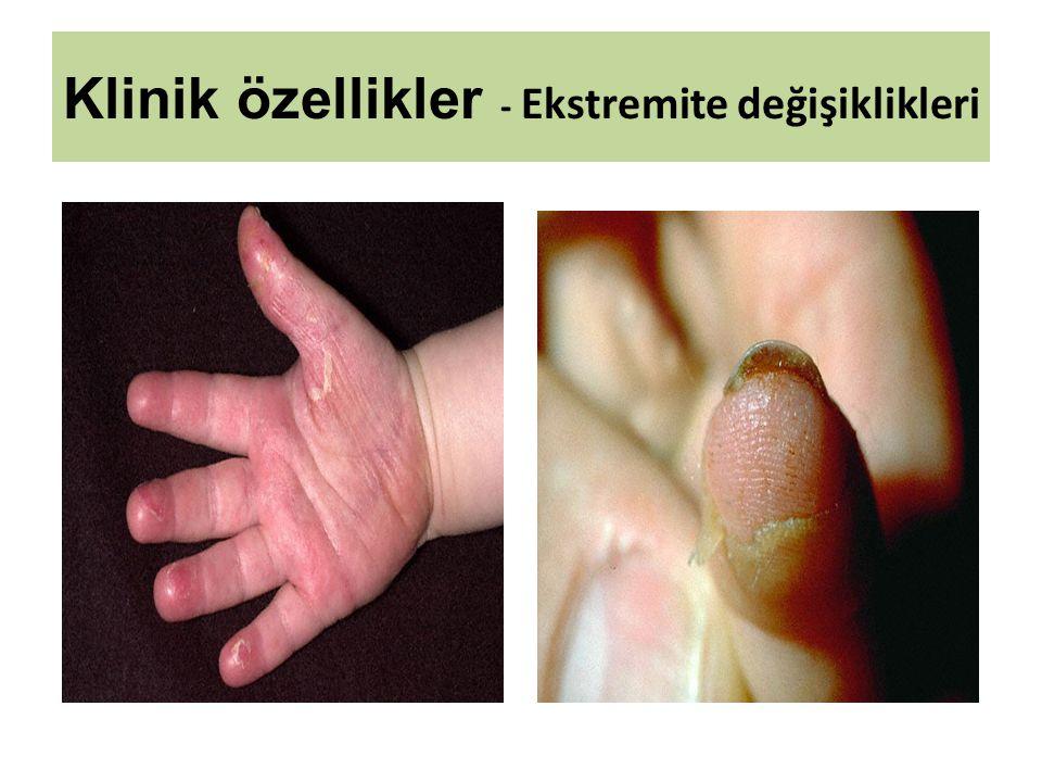 Klinik özellikler - Ekstremite değişiklikleri