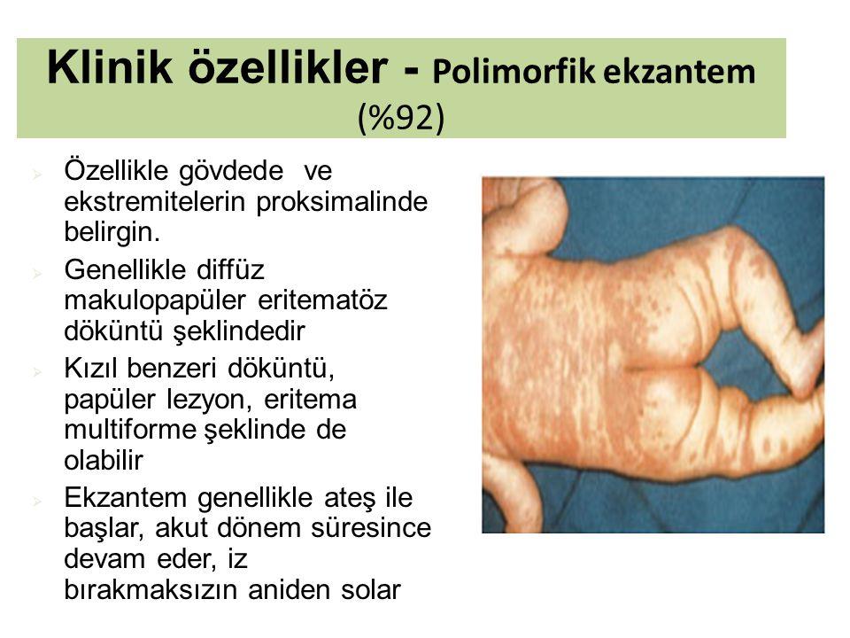 Klinik özellikler - Polimorfik ekzantem (%92)