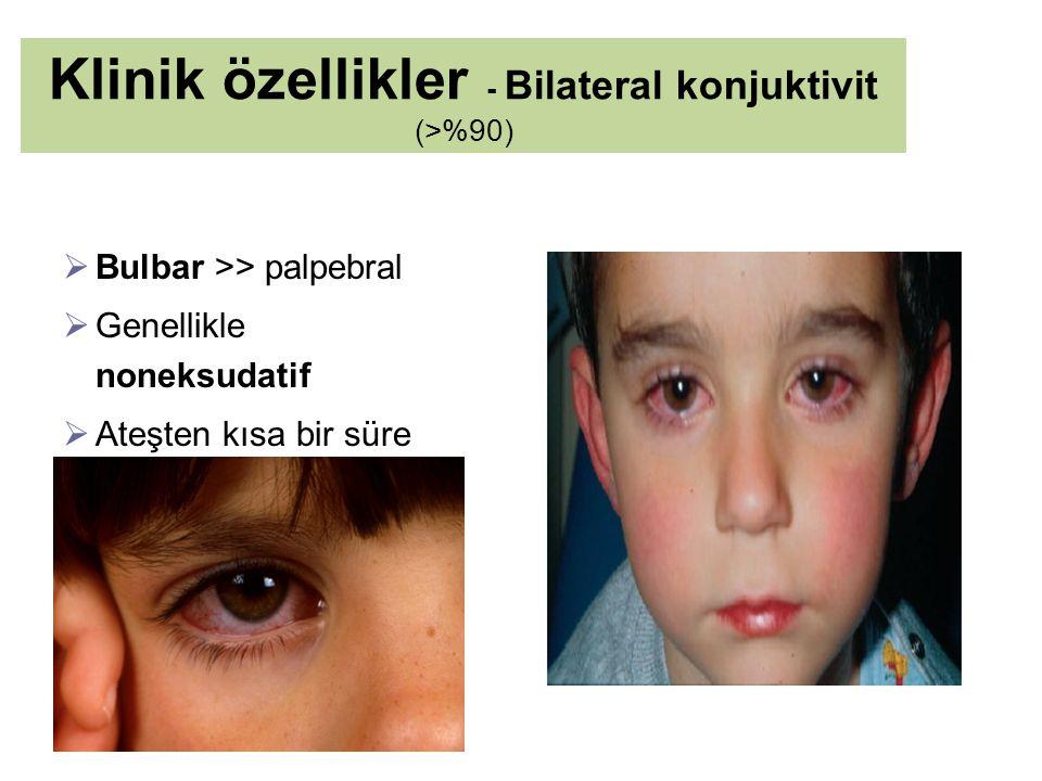 Klinik özellikler - Bilateral konjuktivit (>%90)