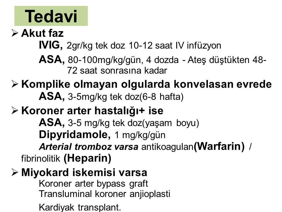 Tedavi Akut faz IVIG, 2gr/kg tek doz 10-12 saat IV infüzyon