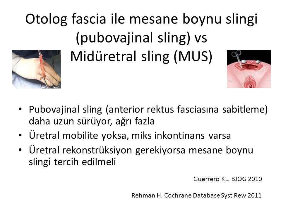 Otolog fascia ile mesane boynu slingi (pubovajinal sling) vs Midüretral sling (MUS)