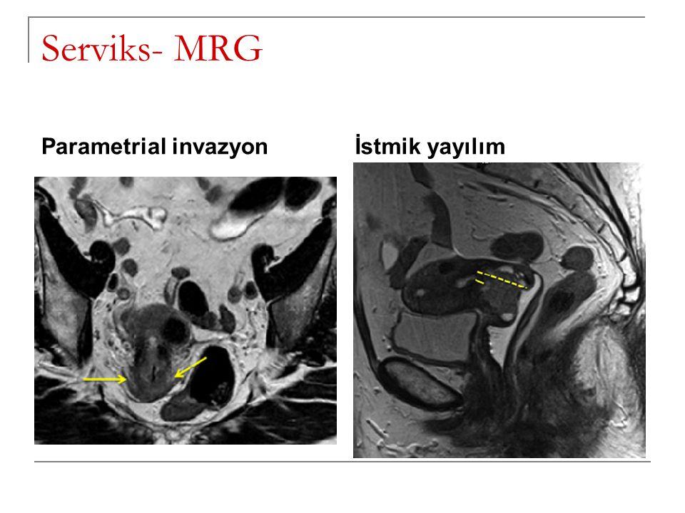 Serviks- MRG Parametrial invazyon İstmik yayılım