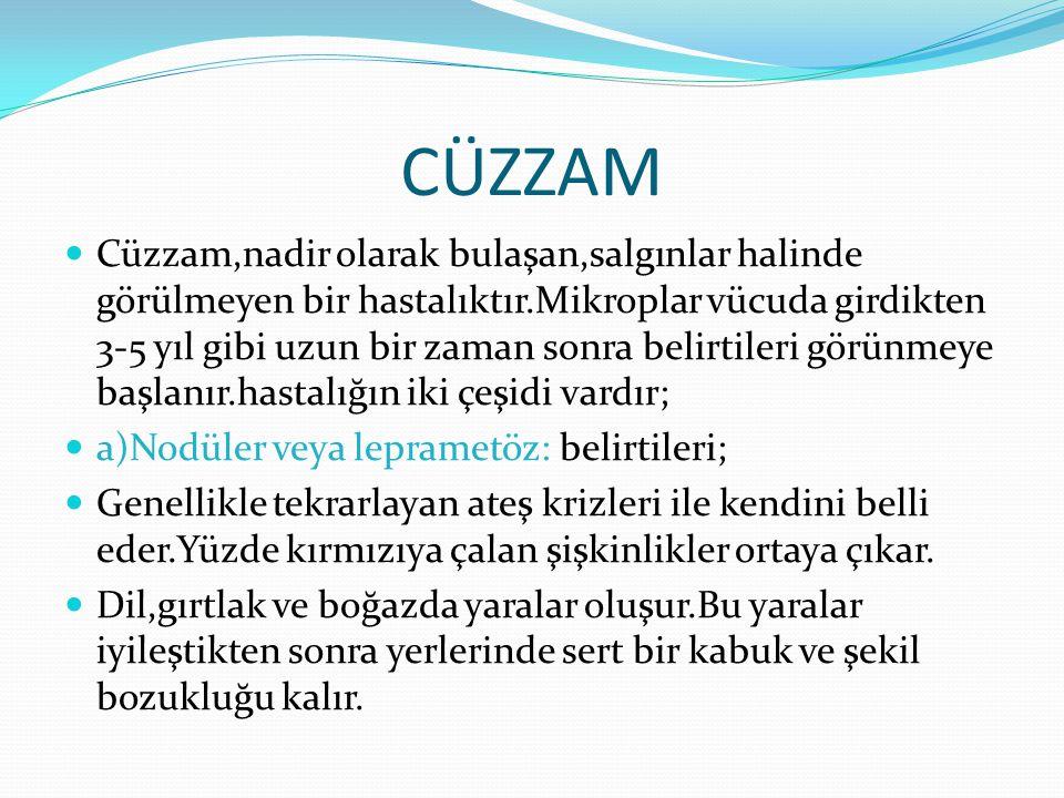 CÜZZAM