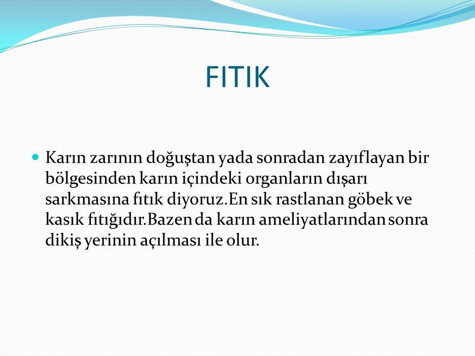 FITIK