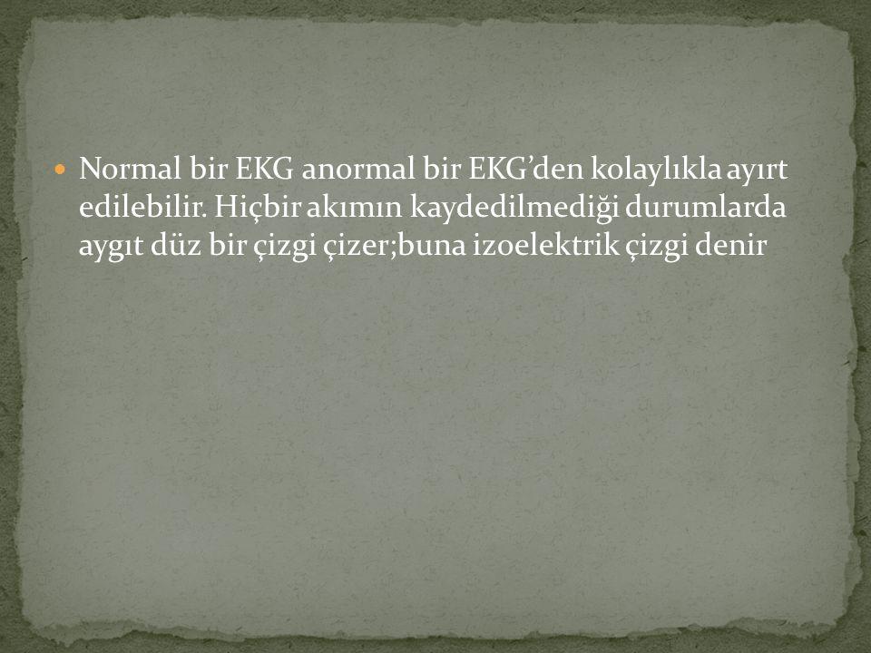Normal bir EKG anormal bir EKG'den kolaylıkla ayırt edilebilir