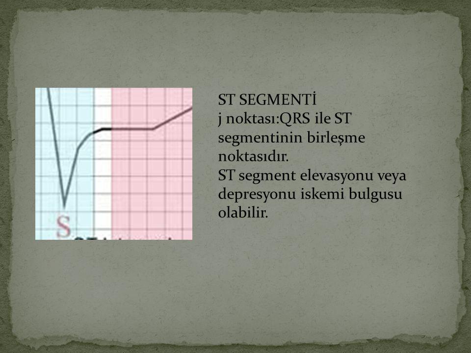 ST SEGMENTİ j noktası:QRS ile ST segmentinin birleşme noktasıdır. ST segment elevasyonu veya depresyonu iskemi bulgusu.