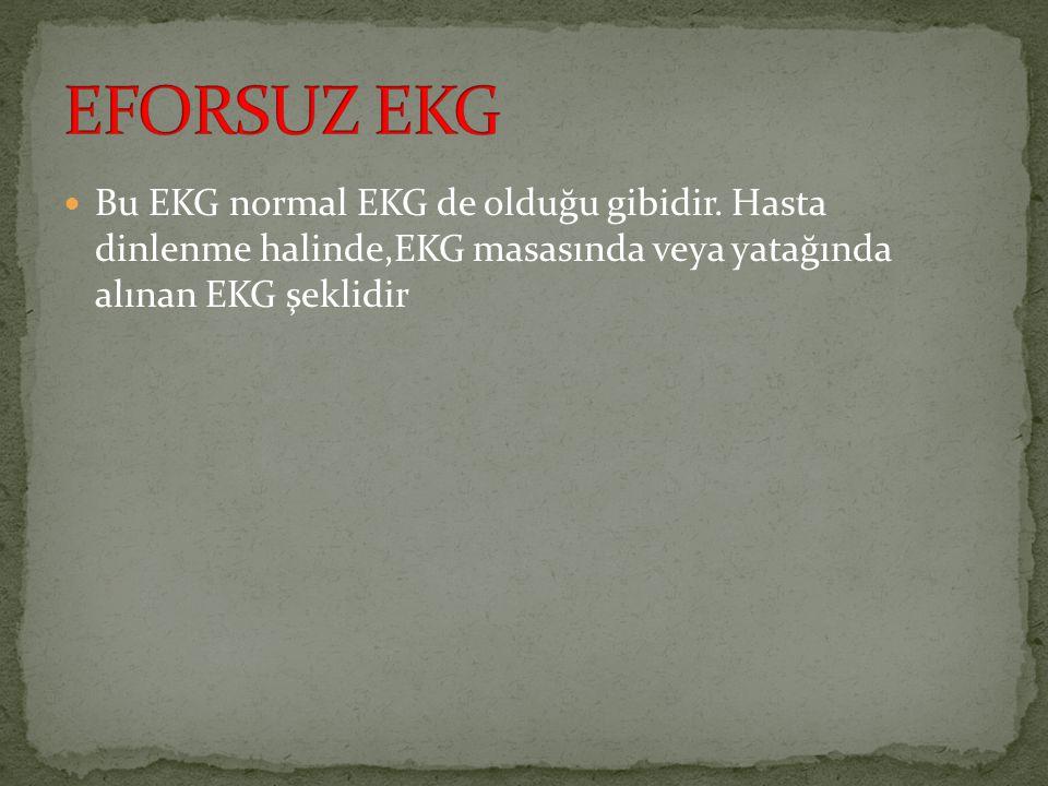 EFORSUZ EKG Bu EKG normal EKG de olduğu gibidir.