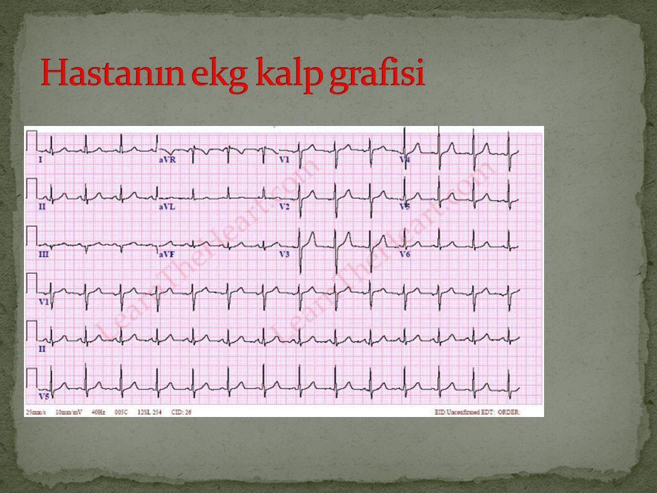 Hastanın ekg kalp grafisi