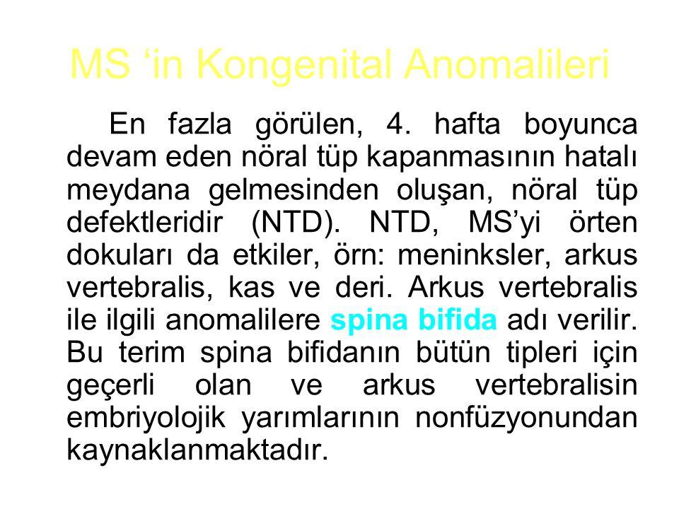MS 'in Kongenital Anomalileri
