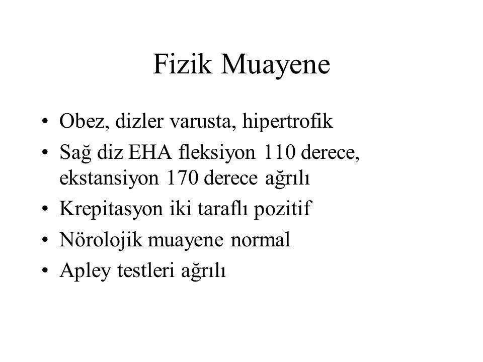 Fizik Muayene Obez, dizler varusta, hipertrofik