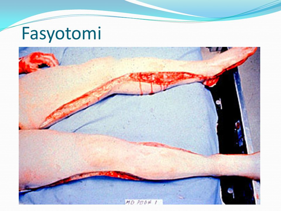 Fasyotomi