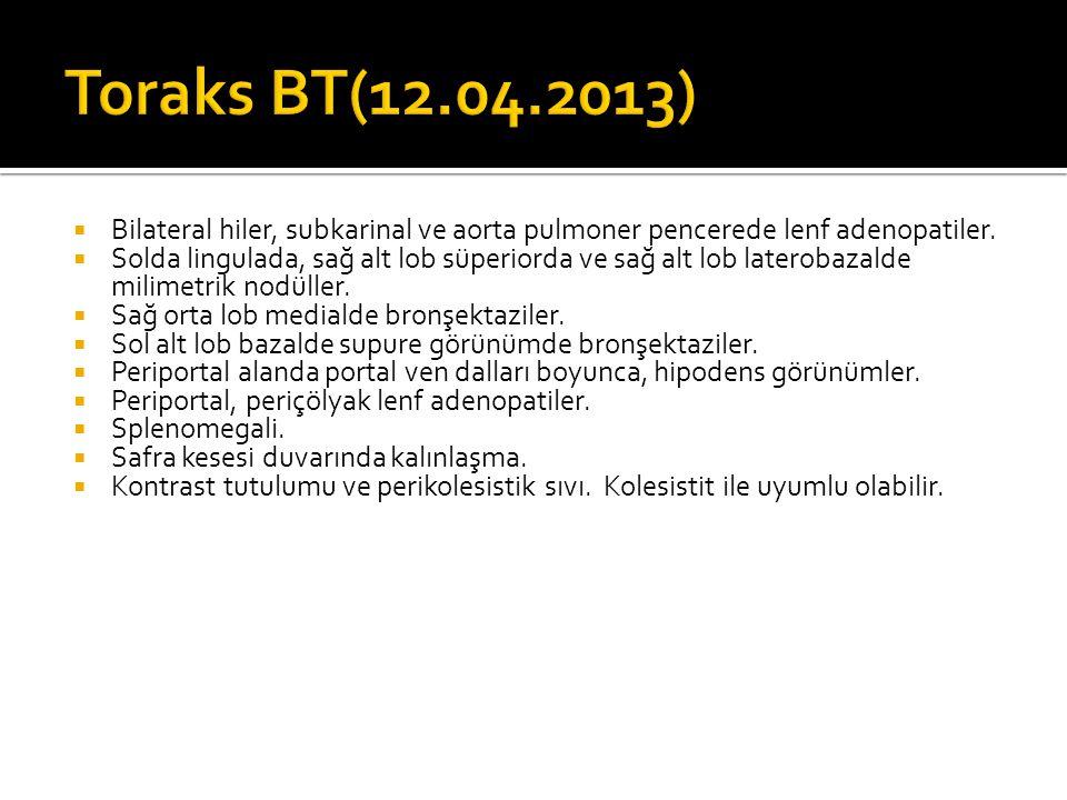 Toraks BT(12.04.2013) Bilateral hiler, subkarinal ve aorta pulmoner pencerede lenf adenopatiler.