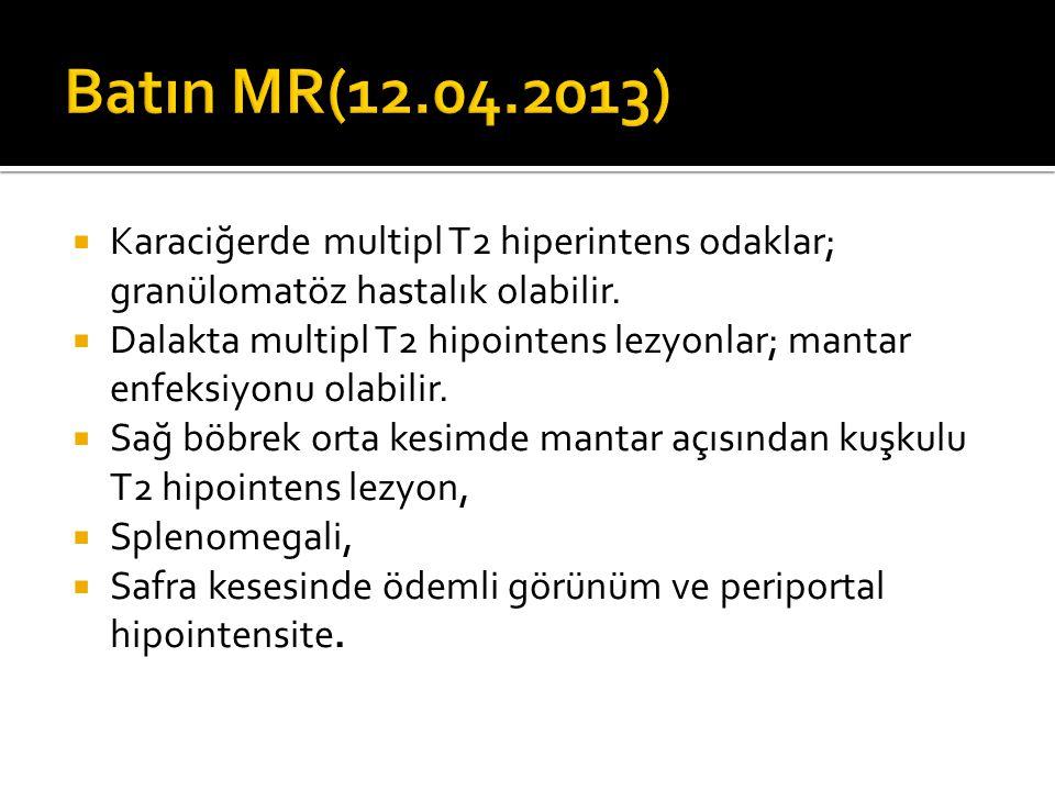 Batın MR(12.04.2013) Karaciğerde multipl T2 hiperintens odaklar; granülomatöz hastalık olabilir.