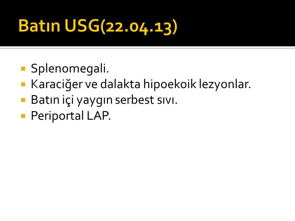 Batın USG(22.04.13) Splenomegali.