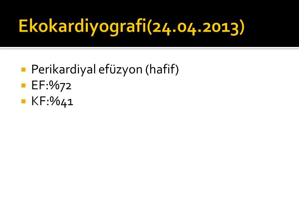 Ekokardiyografi(24.04.2013) Perikardiyal efüzyon (hafif) EF:%72 KF:%41