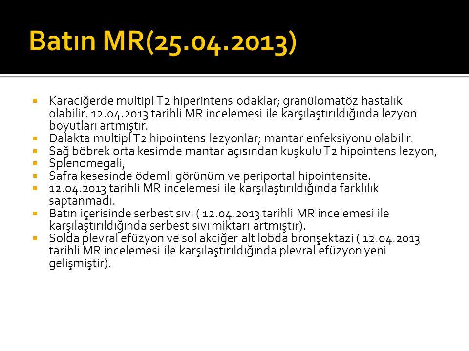 Batın MR(25.04.2013)