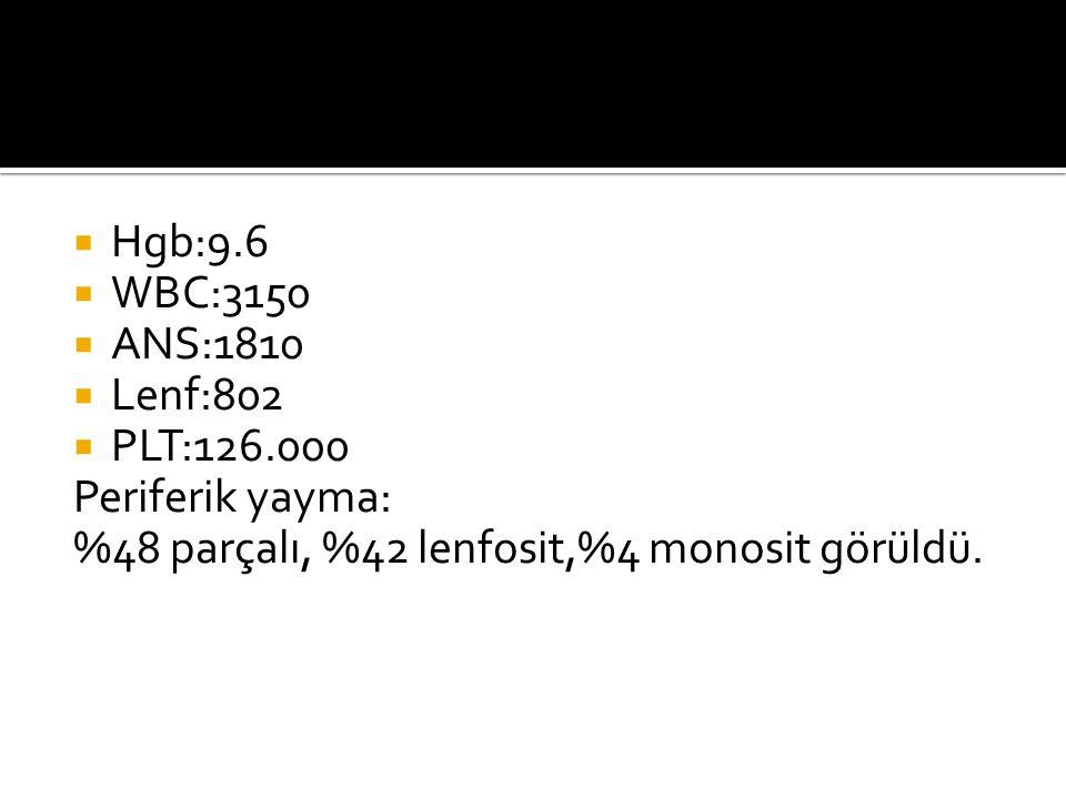 Hgb:9.6 WBC:3150. ANS:1810. Lenf:802. PLT:126.000.