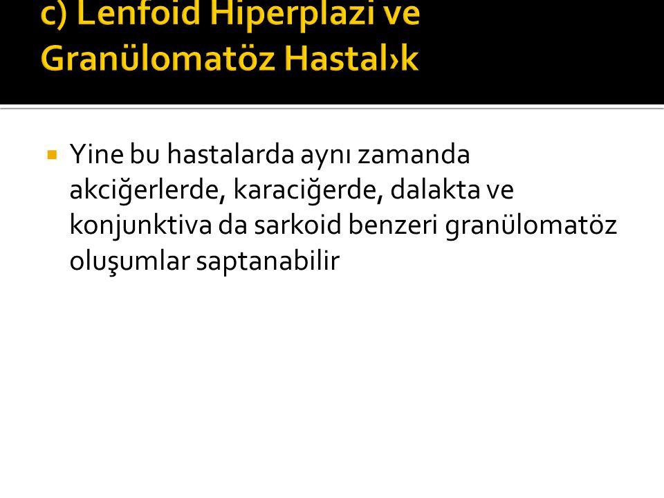 c) Lenfoid Hiperplazi ve Granülomatöz Hastal›k