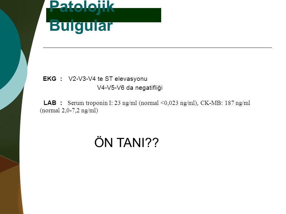 Patolojik Bulgular EKG : V2-V3-V4 te ST elevasyonu ÖN TANI