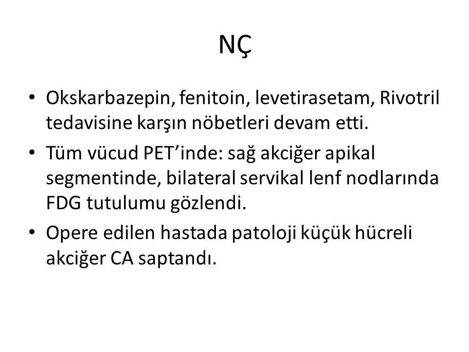 NÇ Okskarbazepin, fenitoin, levetirasetam, Rivotril tedavisine karşın nöbetleri devam etti.
