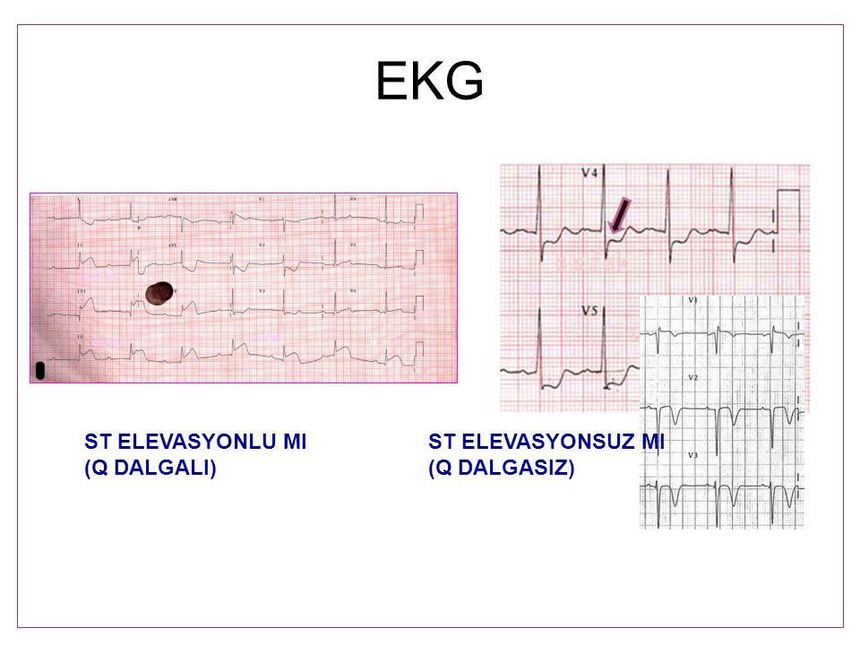 EKG ST ELEVASYONLU MI ST ELEVASYONSUZ MI (Q DALGALI) (Q DALGASIZ)