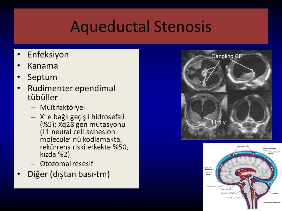 Aqueductal Stenosis Enfeksiyon Kanama Septum