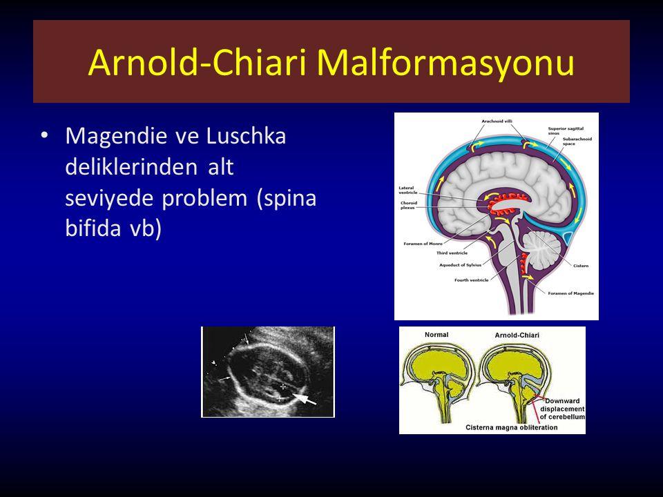 Arnold-Chiari Malformasyonu