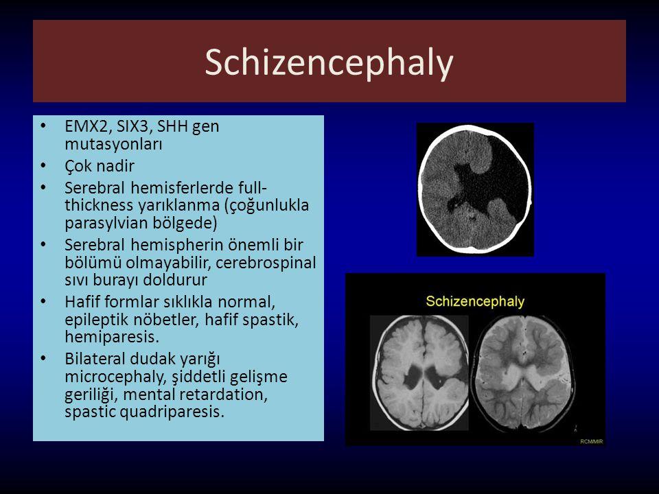 Schizencephaly EMX2, SIX3, SHH gen mutasyonları Çok nadir