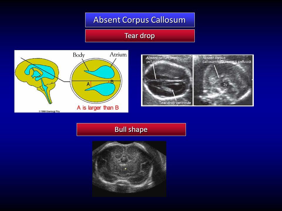 Absent Corpus Callosum