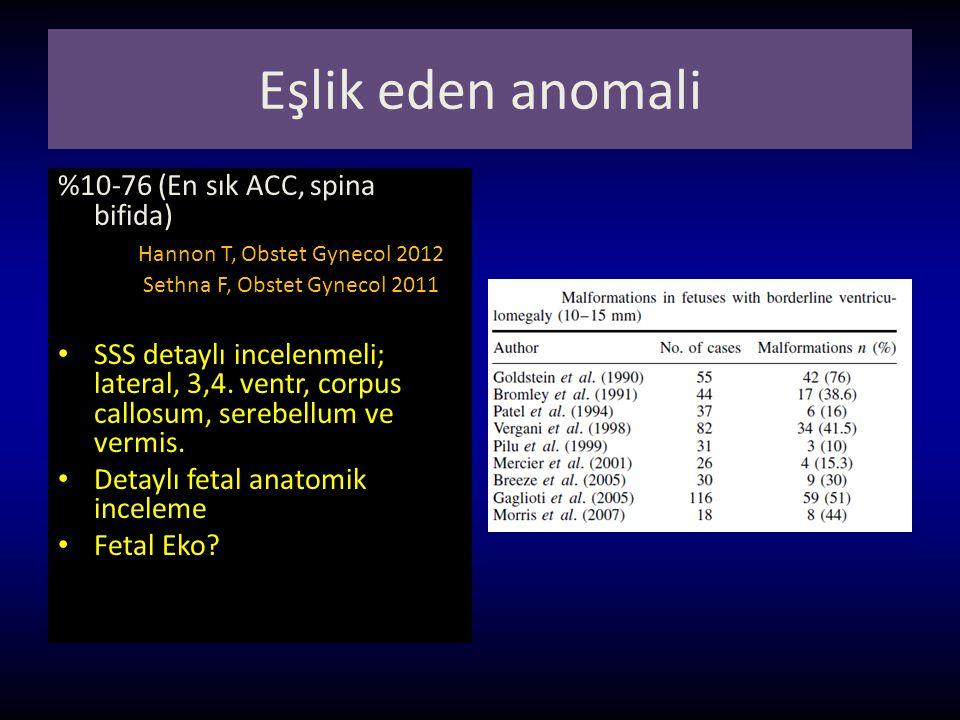 Eşlik eden anomali %10-76 (En sık ACC, spina bifida)