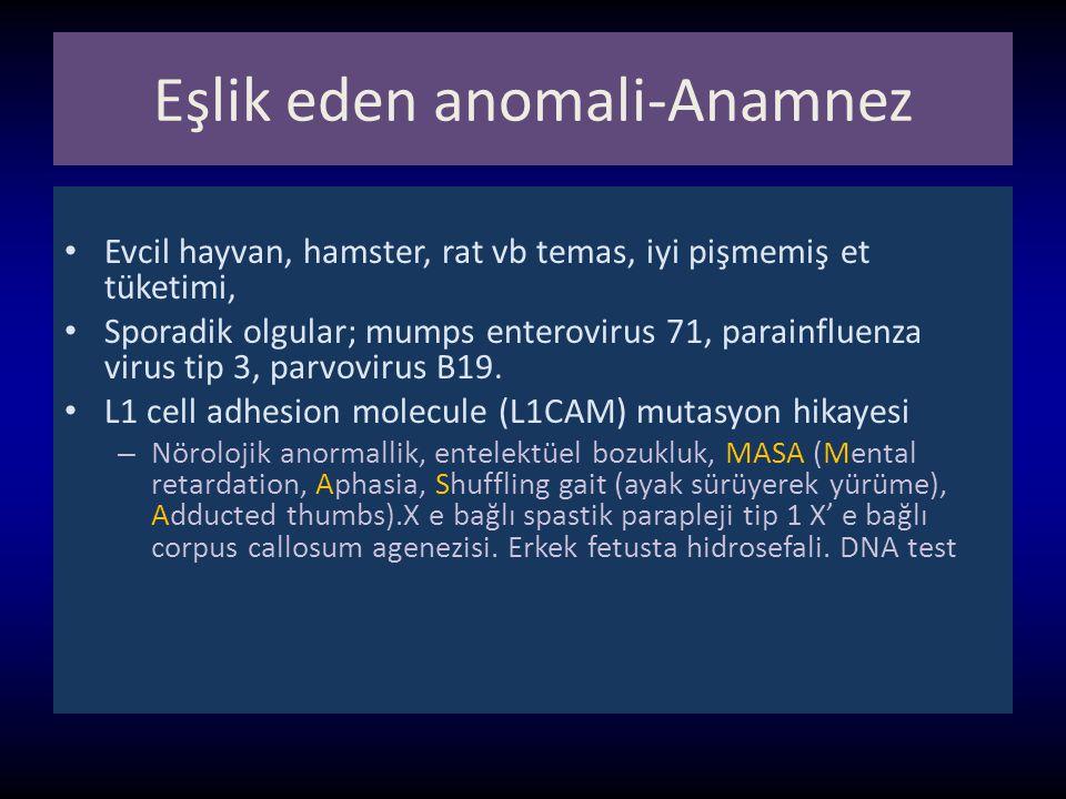 Eşlik eden anomali-Anamnez
