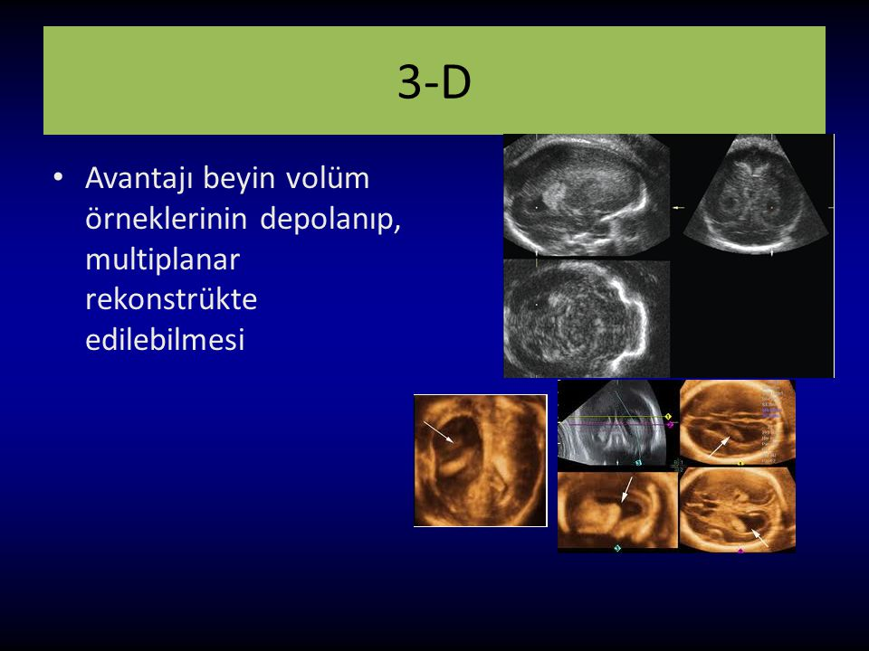 3-D Avantajı beyin volüm örneklerinin depolanıp, multiplanar rekonstrükte edilebilmesi