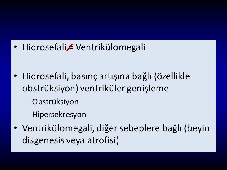 Hidrosefali = Ventrikülomegali