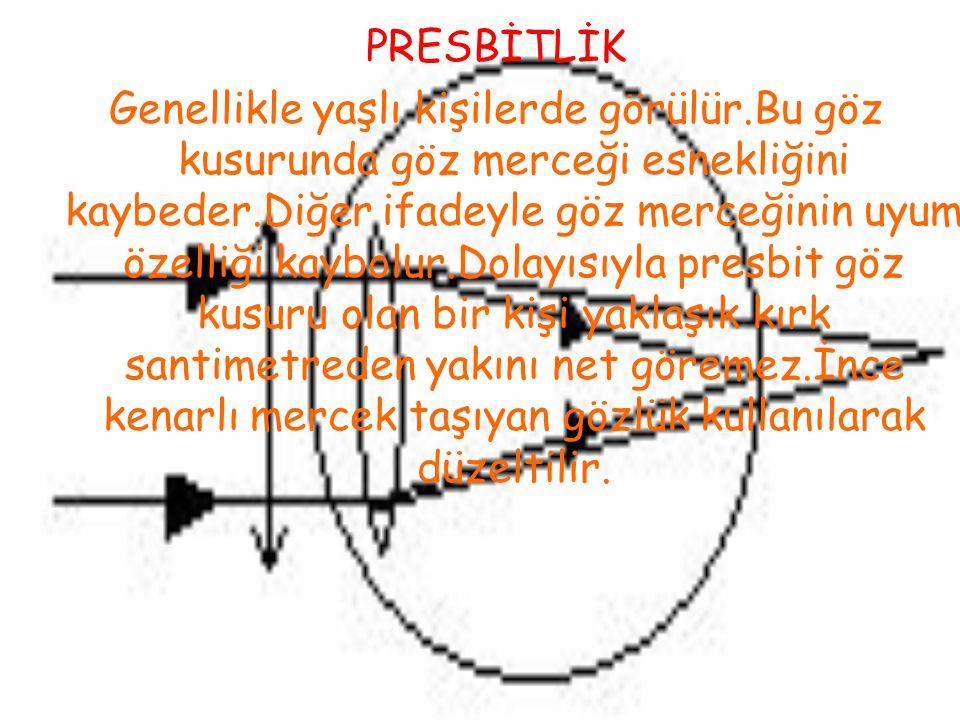 PRESBİTLİK