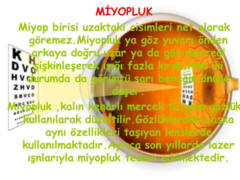 MİYOPLUK