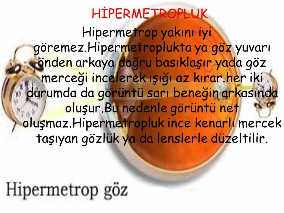 HİPERMETROPLUK