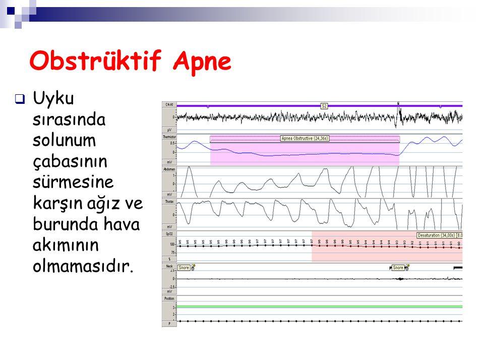 Obstrüktif Apne Uyku sırasında solunum çabasının sürmesine karşın ağız ve burunda hava akımının olmamasıdır.