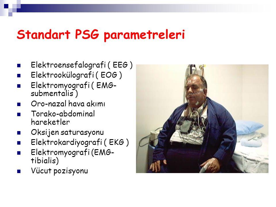 Standart PSG parametreleri