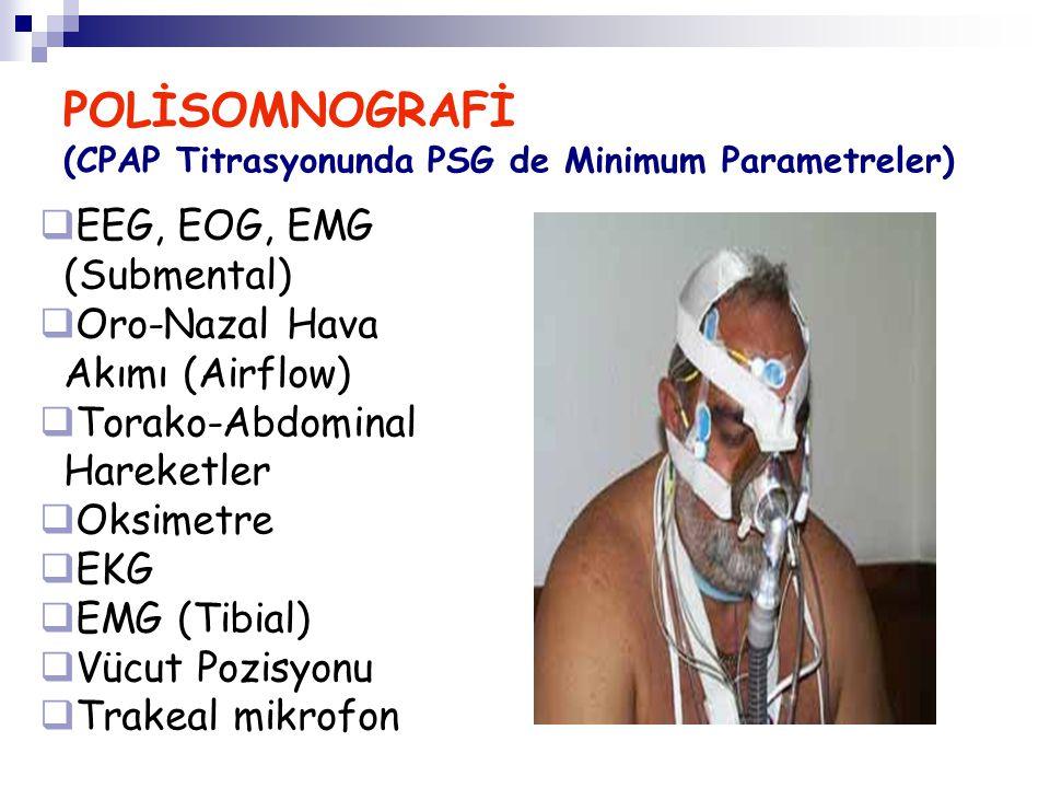 POLİSOMNOGRAFİ (CPAP Titrasyonunda PSG de Minimum Parametreler)