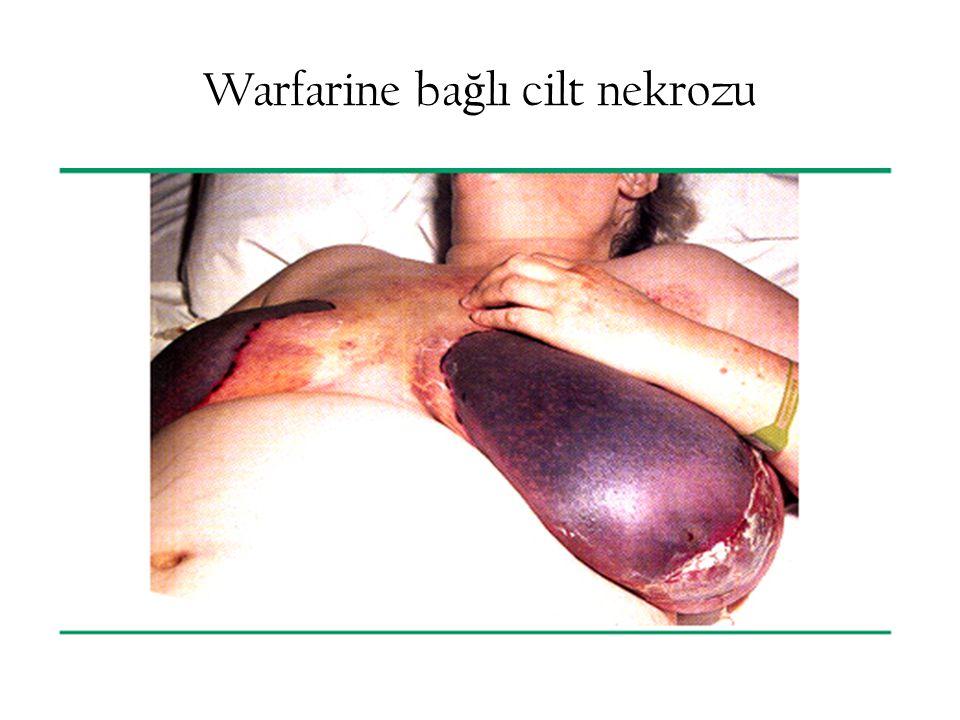 Warfarine bağlı cilt nekrozu