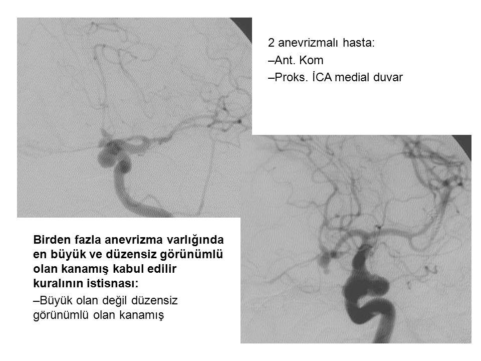 2 anevrizmalı hasta: Ant. Kom. Proks. İCA medial duvar. Birden fazla anevrizma varlığında en büyük ve düzensiz görünümlü olan kanamış kabul edilir.