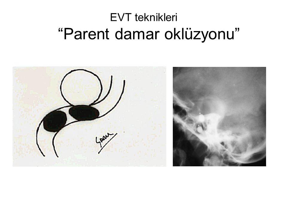 EVT teknikleri Parent damar oklüzyonu