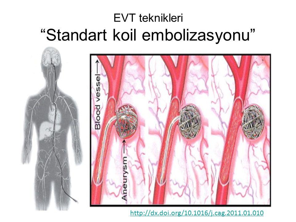 EVT teknikleri Standart koil embolizasyonu