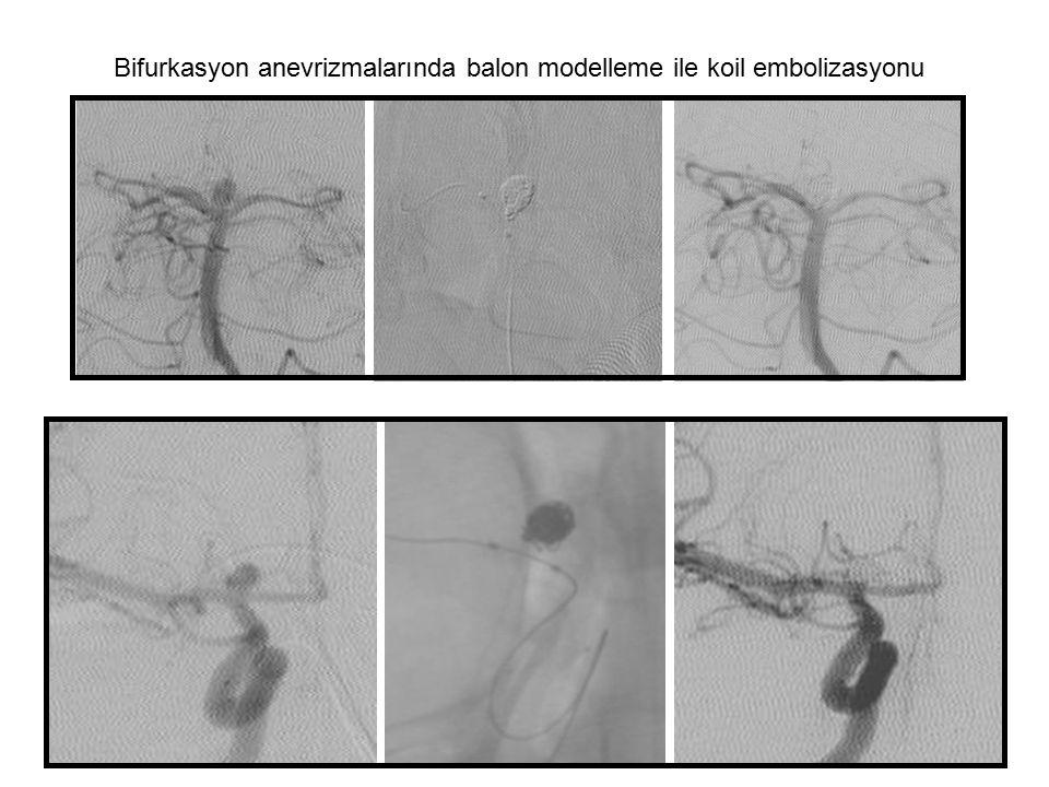 Bifurkasyon anevrizmalarında balon modelleme ile koil embolizasyonu