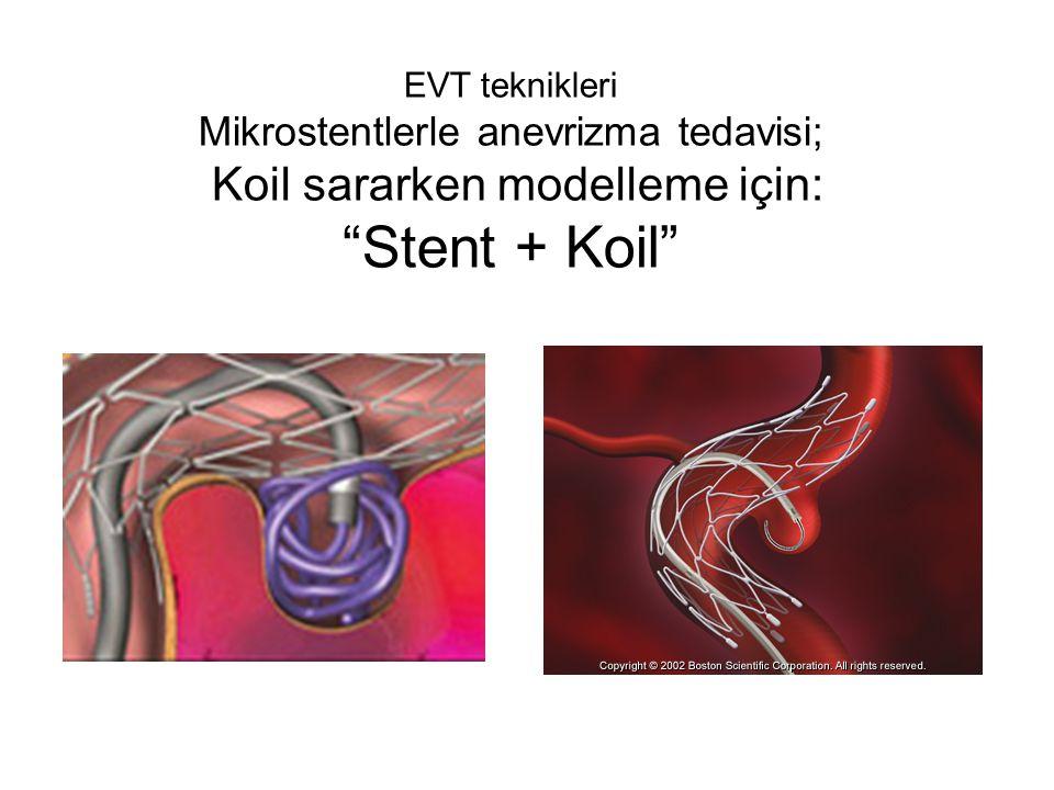 EVT teknikleri Mikrostentlerle anevrizma tedavisi; Koil sararken modelleme için: Stent + Koil