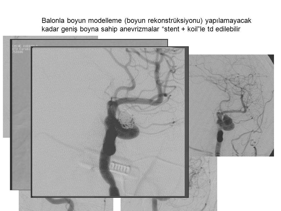 Balonla boyun modelleme (boyun rekonstrüksiyonu) yapılamayacak kadar geniş boyna sahip anevrizmalar stent + koil le td edilebilir