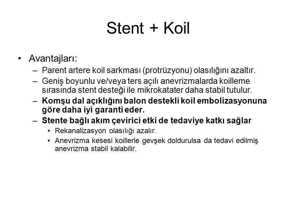 Stent + Koil Avantajları: