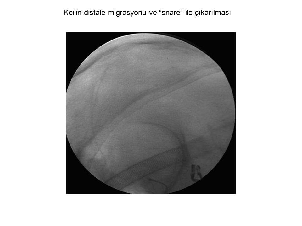 Koilin distale migrasyonu ve snare ile çıkarılması