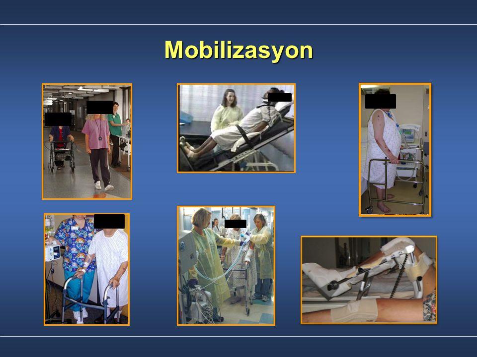 Mobilizasyon